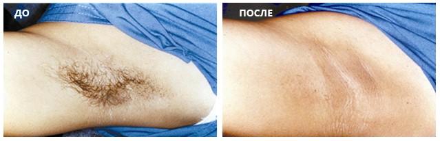 Эффективность лазерной эпиляция в области подмышек через 4 месяца после курса из 3-х процедур насадкой Diolaze