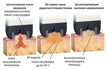 Схематичное представление механизма работы аппликатора TiteFX