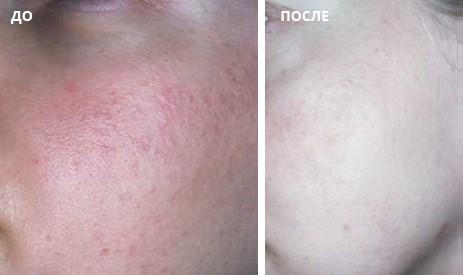 Устранение сосудистых нарушений на коже лица с помощью насадки Lumecca SR 515/580