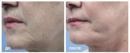 Изменения текстуры и пигментации кожи после фракционного радиочастотного воздействия аппликатором Fractora (Photo Courtesy Dr. Stephen Mulholland)