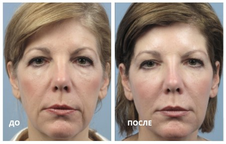 Изменения кожи лица после фракционого радиочастотного воздействия аппликатра Fractora FIRM. (Photo courtesy DR. Stephen Mulholland)
