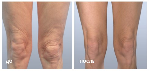 Коррекция кожи ног с помощью аппликатора FIRM Plus (8 процедур с частотой 1 раз в неделю). (Photo courtesy Dr. Stephen Mulholland).