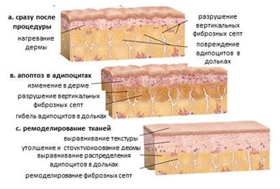 Схема процессов, происходящих после воздействия TiteFX при лечении целлюлита.