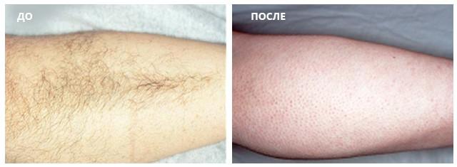 Эффективность лазерной эпиляция в области голени через 6 месяцев после курса из 5-ти процедур насадкой Diolaze
