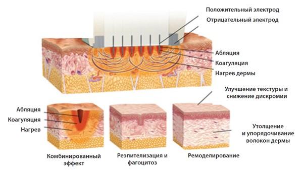 Схемы воздействия аппликатора Fractora на кожу
