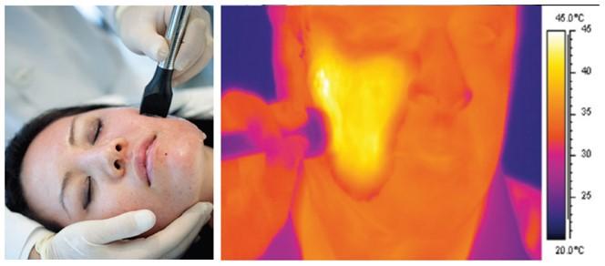 Процедура воздействия на кожу щеки FRACTORA FIRM (верхнее фото) и термограмма области воздействия (нижнее фото)