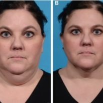 Применение мультимодальной радиочастотной технологии для коррекции возрастных изменений нижней трети лица и шеи